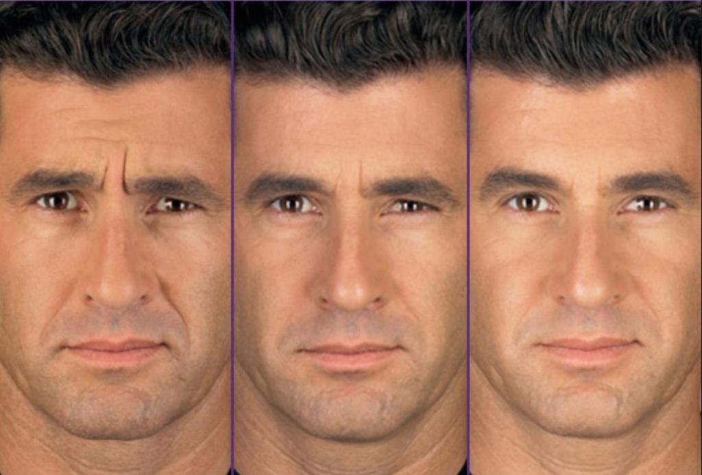 Botox 5